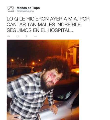 Manos de Topo informan sobre una supuesta paliza a su cantante